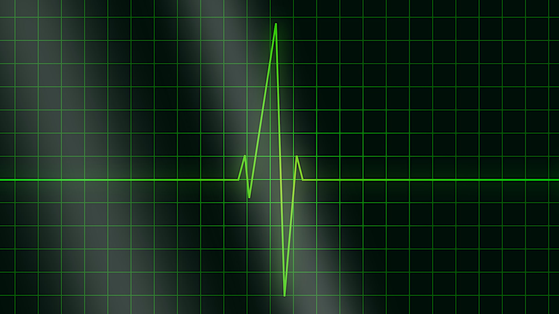 Arrhythmia – What Happens When the Heart Beats Faster