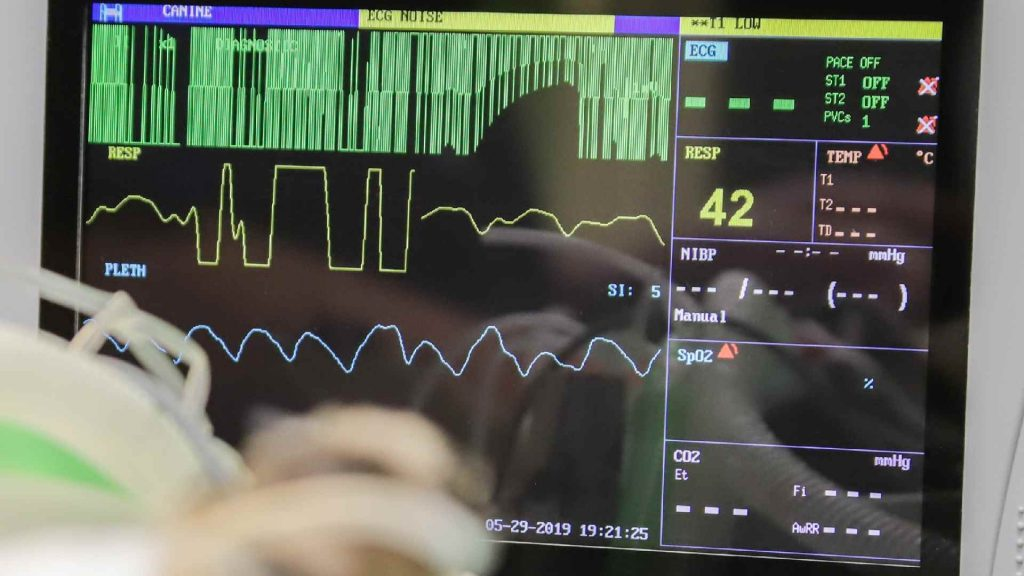 Why is a Heart Ultrasound Done and How it is Performed 2