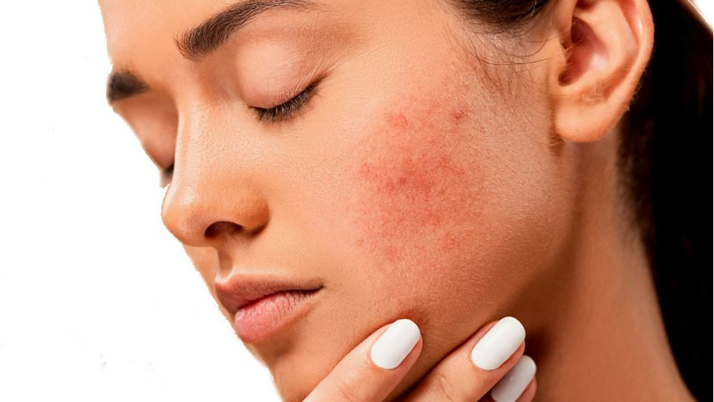 Oily Skin Care - How to Prevent Youthful Pimples 2